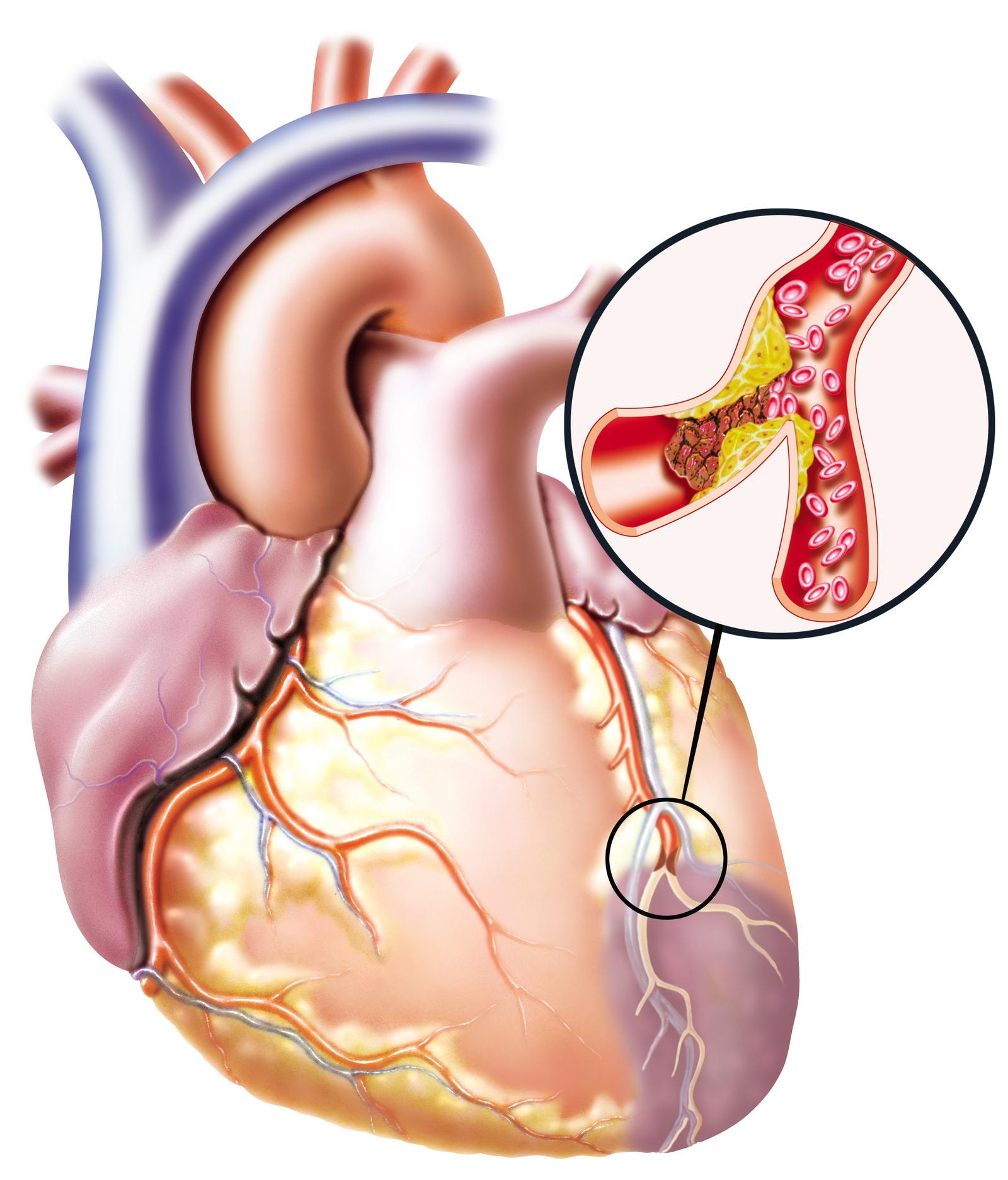 Опасность и лечение заболеваний на фоне атеросклероза сердца